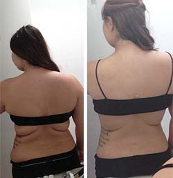 Before and After photos of weight lost