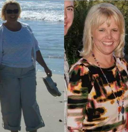 Kathi's Weight Loss Story | New Results Medical Weight Loss