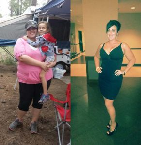 Before and After weight lost photos