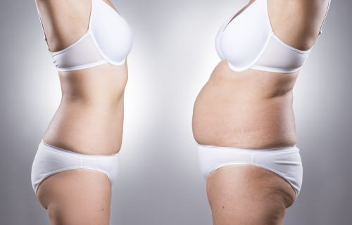 Woman body before and after weight loss