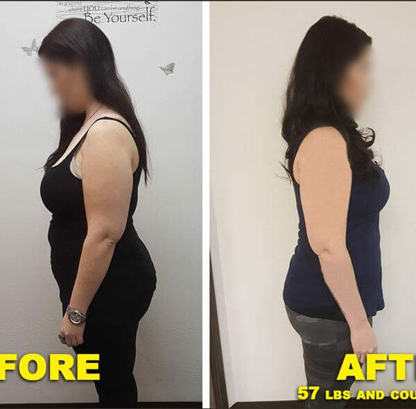 FAQs | New Results Medical Weight Loss | Mesa & Scottsdale